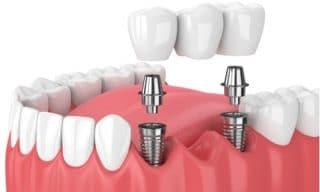 All On 5 Dental Implants