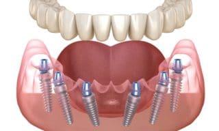 All On 6 Dental Implants